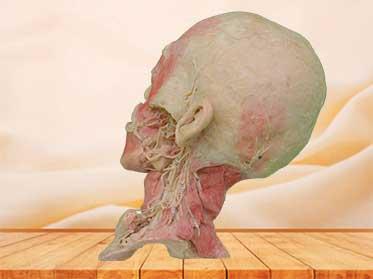 Plastinado de Nervios y Vasos Profundos de Cabeza y Cuello