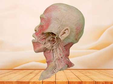 Plastinado de Nervios y Vasos Profundos de Cabeza y Cuello para educación médica