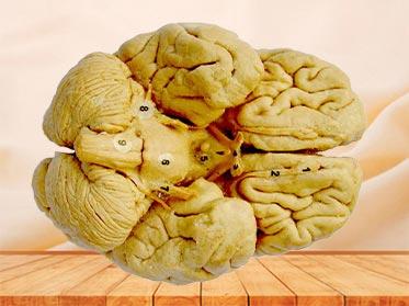 Espécimen Plastinado de Morfología del Cerebro