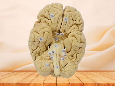Espécimen Plastinado de Cerebro
